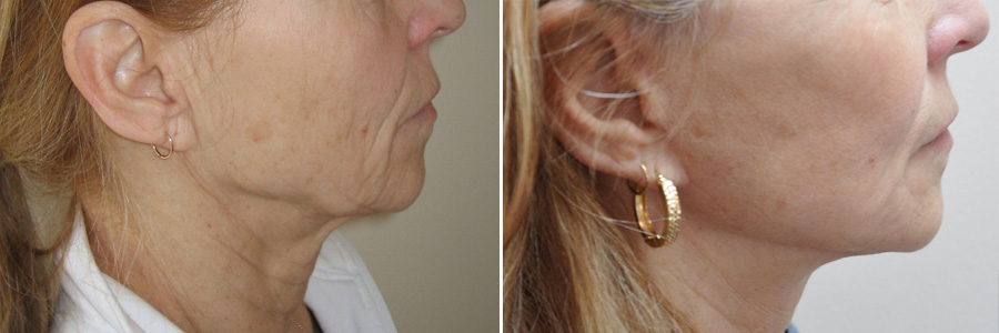 Before-After Picture of Facelift